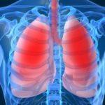 lung-98eb323635d683871c98eb5335dc40cc3e7e6cb8